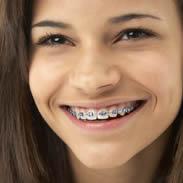 Orthodontics Summer Hill