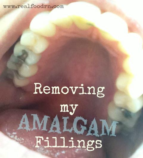 removing-my-amalgam-fillings