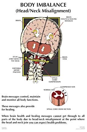 NUCCA Body Imbalance infographic
