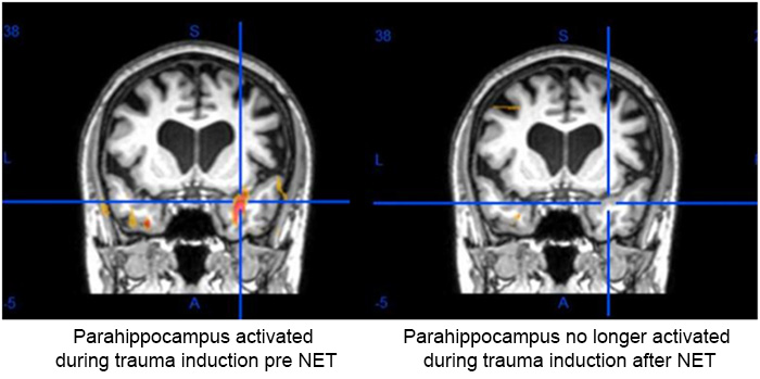pre-and-post-fmri-cancer-study-001