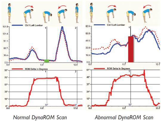 DynaRom Scan Chart
