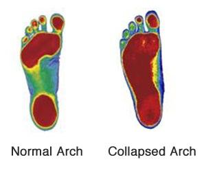 Foot scans