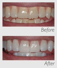 {PJ} teeth whitening