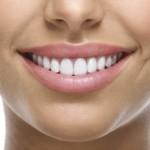 dental-veneers-150x150
