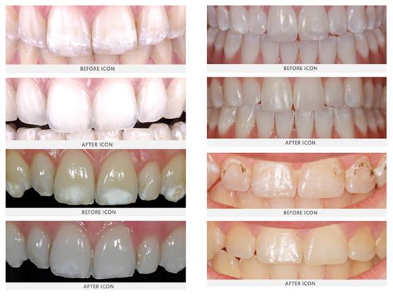 Dental Icon examples