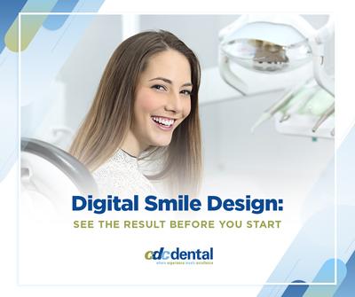 digital-smile-design-facebook-image