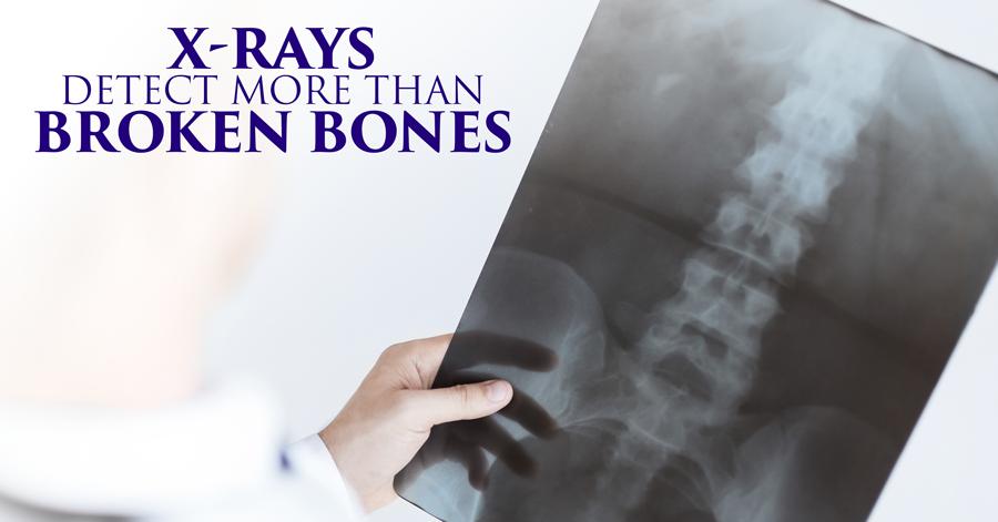 7---Detect-More-Than-Broken-Bones