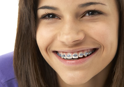 services-traditional-braces