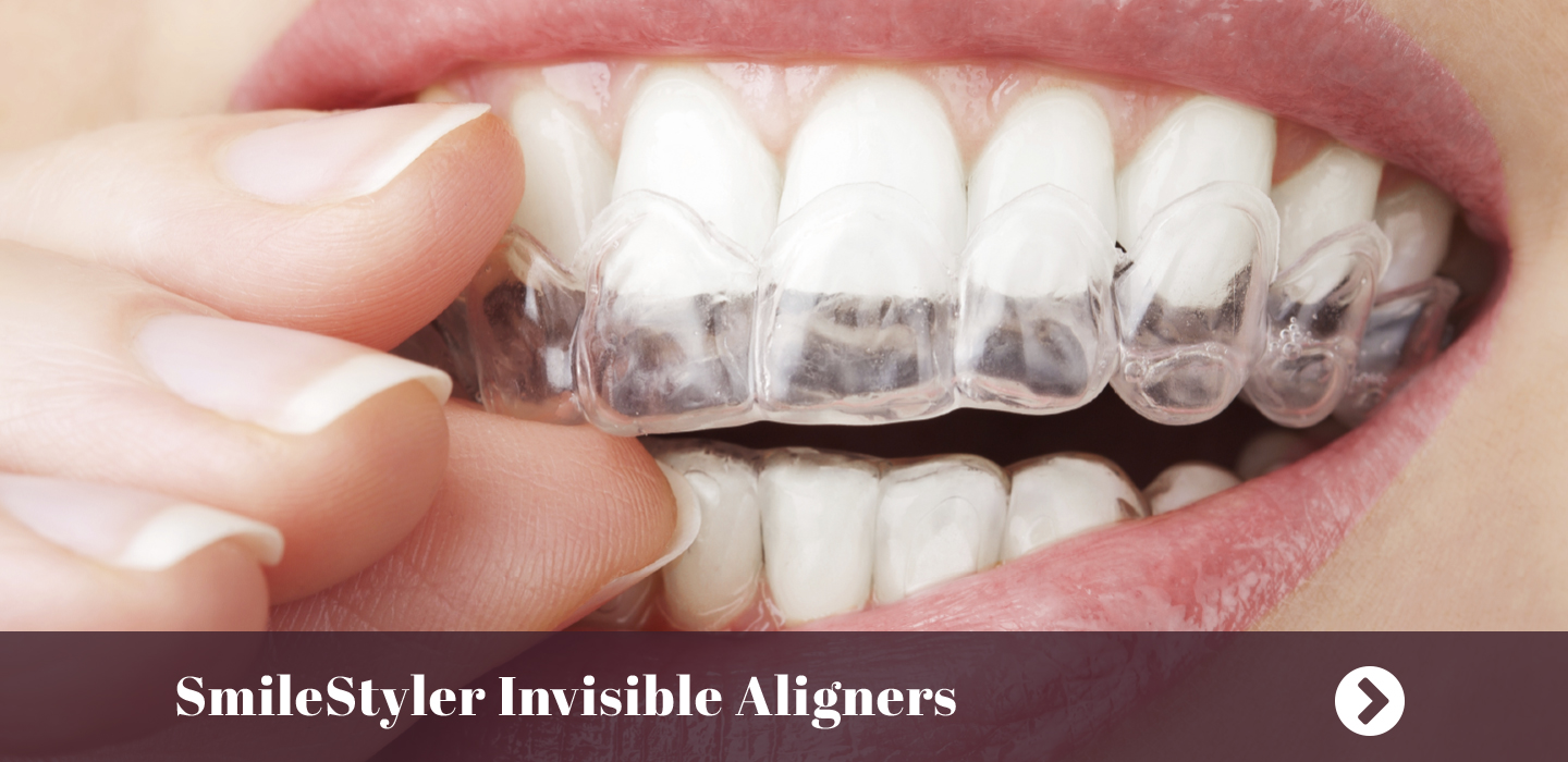 SmileStyler Invisible Aligners