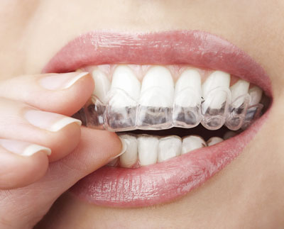 Orthodontics at Aevitas Dentistry in Newmarket