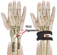 Wrist Widget Image
