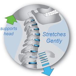 Supported neck bones diagram