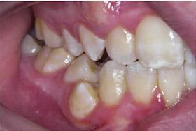 braces-1-before-b