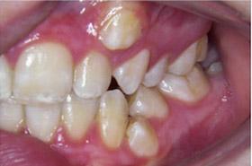 braces-1-before-c
