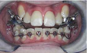 braces-1-during-a