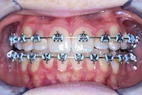 braces-1-progress-a