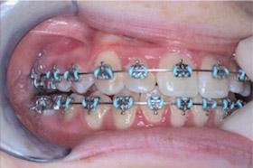 braces-1-progress-b