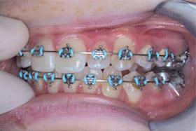 braces-1-progress-c