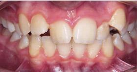 braces-2-before