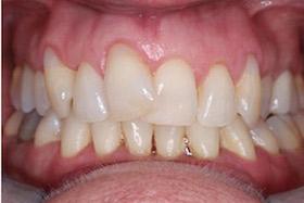 rapid-smiles-1-before