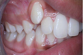 rapid-smiles-3-before-b