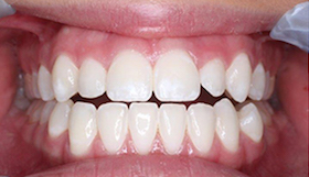 whitening-1-after