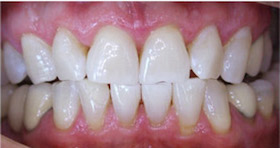 whitening-2-after