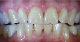 whitening-2-before
