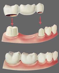 dental bridge perth