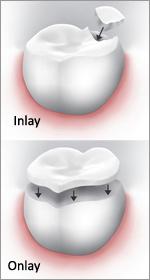 Mt Lawley dental Inlays onlays