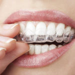 woman inserting clear aligner