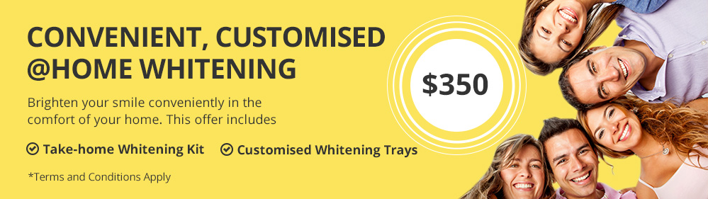 Home whitening special offer