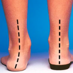 With and without an orthotic