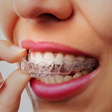 Aligners Orthodontics
