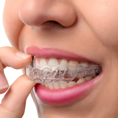 Woman putting Invisalign on