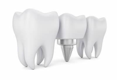 Dentist Zetland Dental Implants