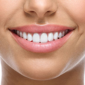 Closeup of woman smile with white teeth