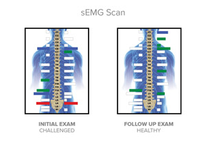 Before and after sEMG scans