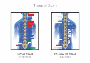 Before and after thermal images of spine