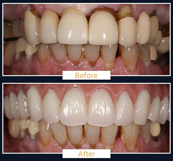 Before & After 1 - All on 4