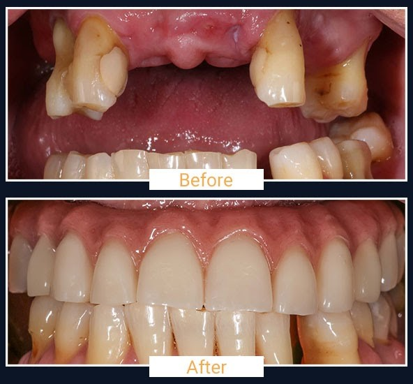 Before & After 2 - All on 4