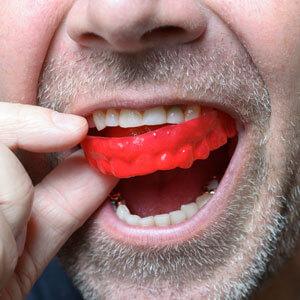 Man using a custom Mouthguard