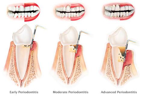 Gingivitis and Periodontitis illustration