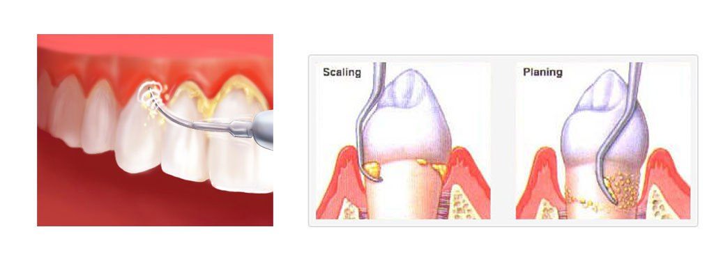 Scaling and root planing illustration