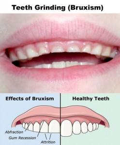 Teeth-Grinding-Bruxism