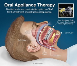 oral-appliance-therapy