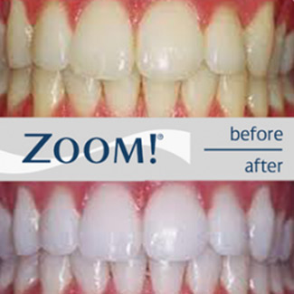 zoom teeth whitening before and after images