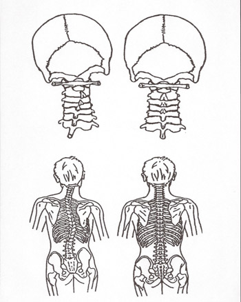 Drawing of how NUCCA care can help your spine and neck.