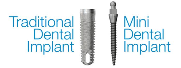 implants-illustration