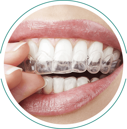 woman inserting invisible braces